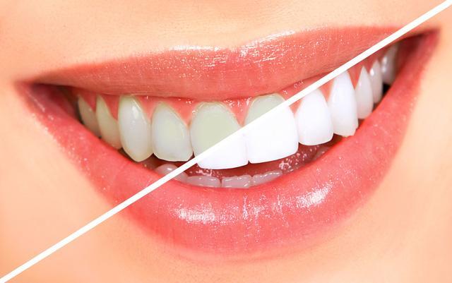 Kết quả hình ảnh cho trắng răng