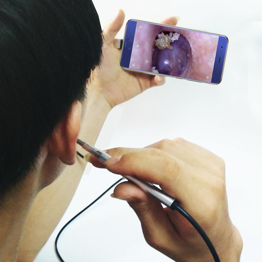Cây lấy ráy tai có đèn soi kết nối điên thoại máy tính LOẠI TỐT - BH 1 đổi 1