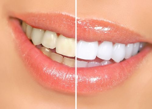 trắng răng với banking soda