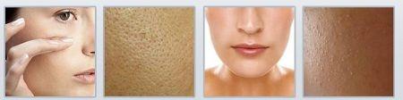 Các vần đề gặp phải khi da bị bít nhiều bụi bẩn