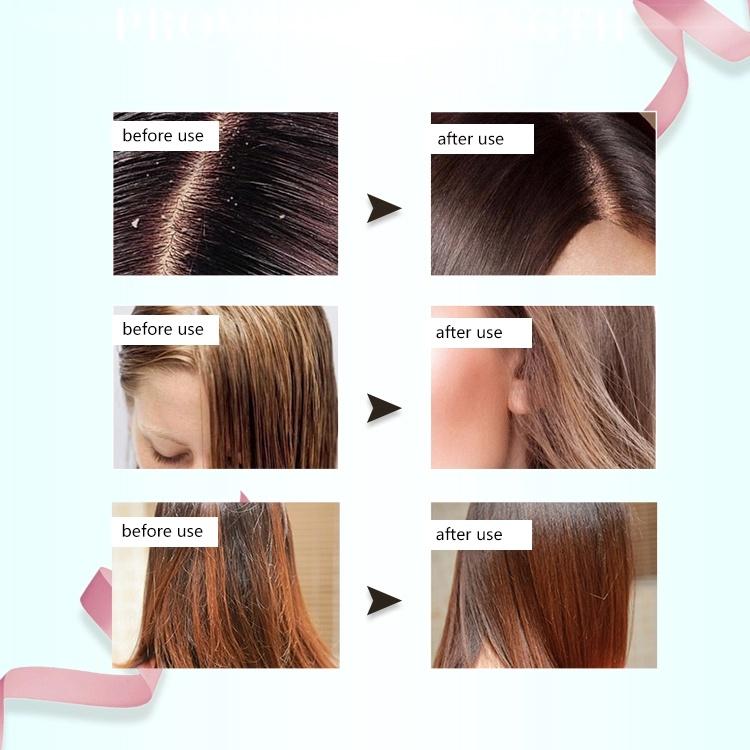 guangzhou anti-itching refreshing strengthen damaged hair shampoo oem/odm