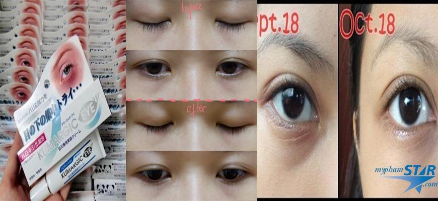 Kem Đặc Trị quầng thâm mắt Kumargic - Nhật Bản 4