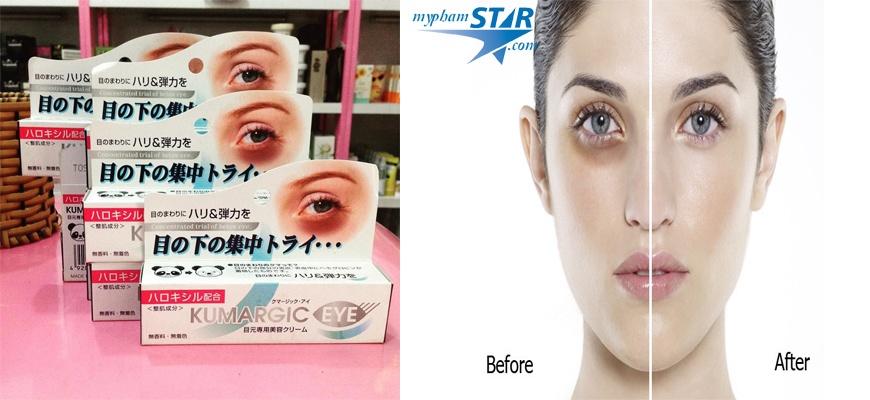 Kem Đặc Trị quầng thâm mắt Kumargic - Nhật Bản 3
