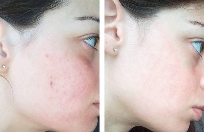 Kết quả hình ảnh cho nước hoa hồng skin lotion meishoku