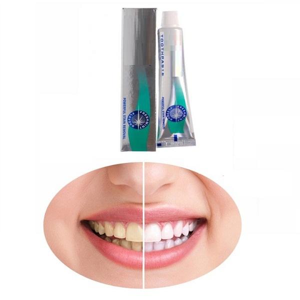 Kem Trắng Răng Và Sạch Vết Ố Vàng Răng Miệng 50ml
